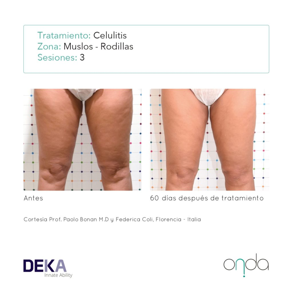 Onda Brochure Casi Clinici ING Rev 1.2 - RMG-ES-WEB_page-0013