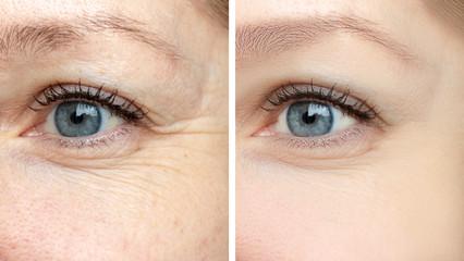 ¿Como quitar las arrugas? Olvídate de ellas con Ultherapy